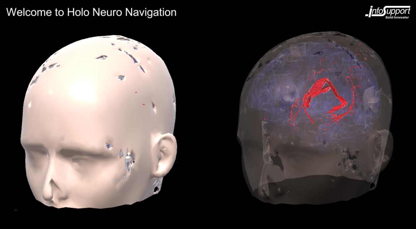 HoloLens neuronavigatie Info Support